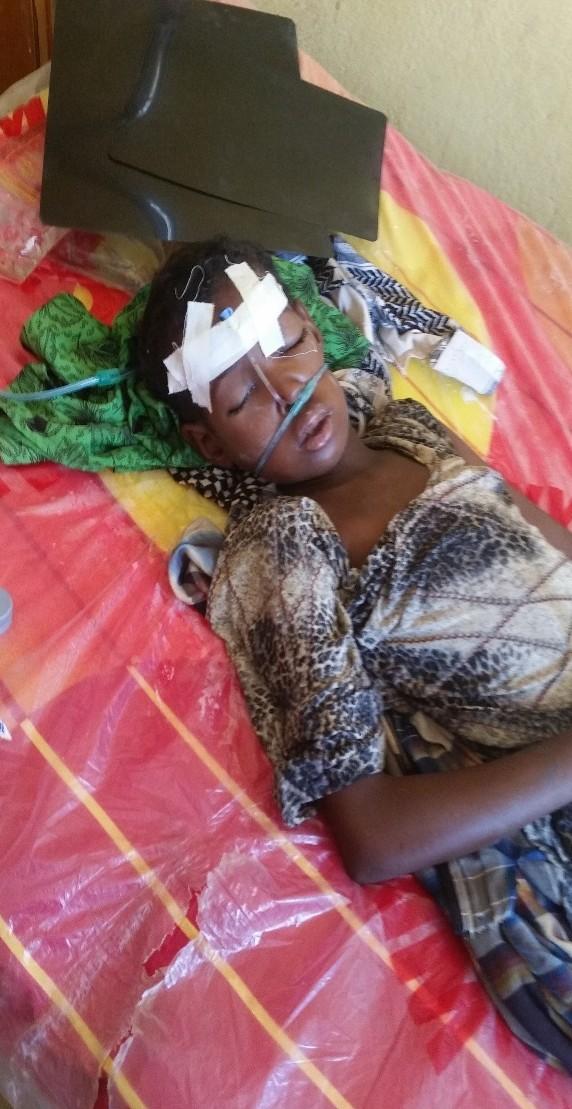 Raxxo niña afectada por tifus